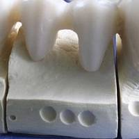 See our catalog with Dental Implants Bulgaria 15