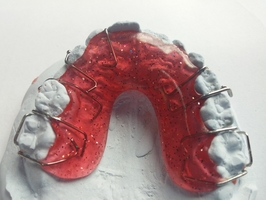 More information about Invisalign 20